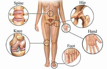 Artroza Artroza