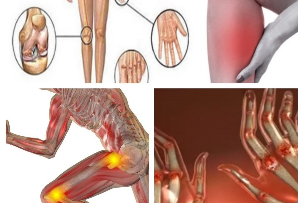 otrăvire alimentară dureri articulare