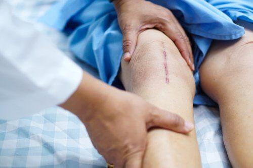 recuperare după chondroplastia genunchiului