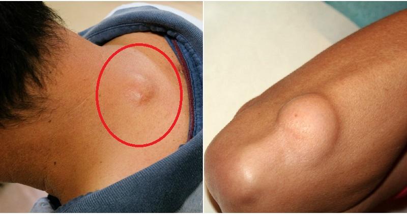 Lipomul genunchiului doare