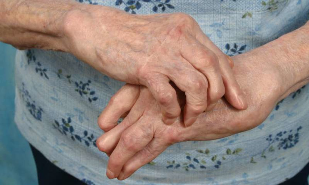 Sindromul Reiter – cauze, diagnostic, simptome, tratament, prognostic – studioharry.ro