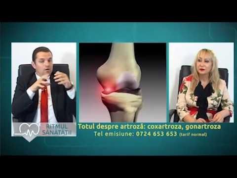 cum este tratată artroza articulației șoldului)