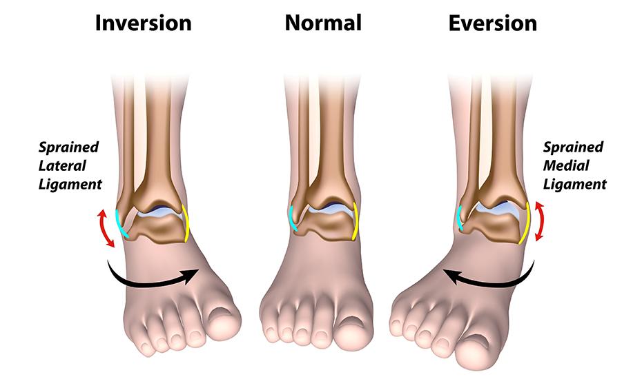 boli și tratamentul articulațiilor gleznei