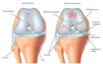 cum să tratezi durerea în articulația genunchiului)