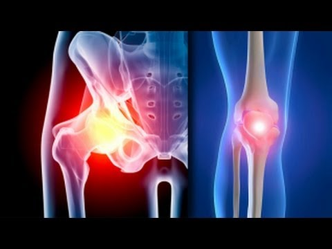 cum să anesteziați articulația genunchiului cu artroză)