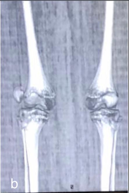 tratamentul fracturii de patelă)