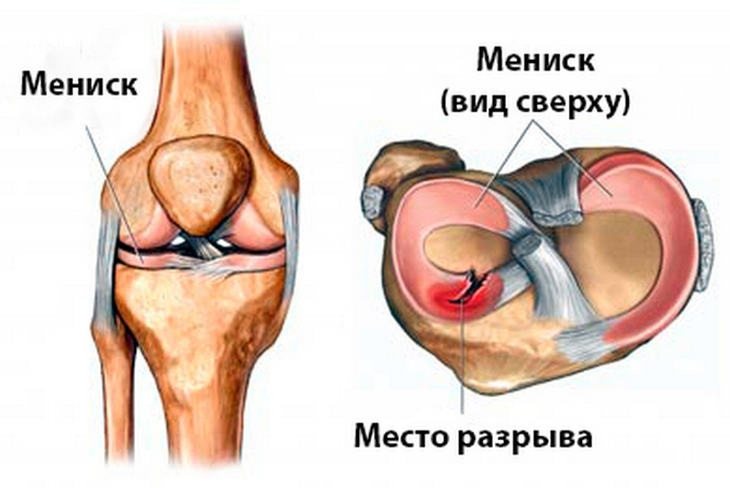 deteriorarea degenerativă a meniscului intern al articulației genunchiului