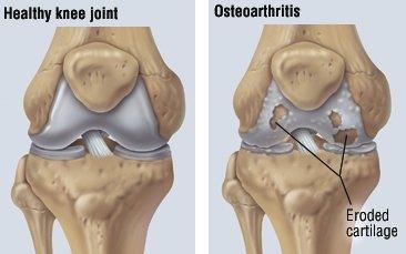 osteoartrita tratamentului articulației falangeale