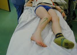 recuperare după luxația articulației șoldului