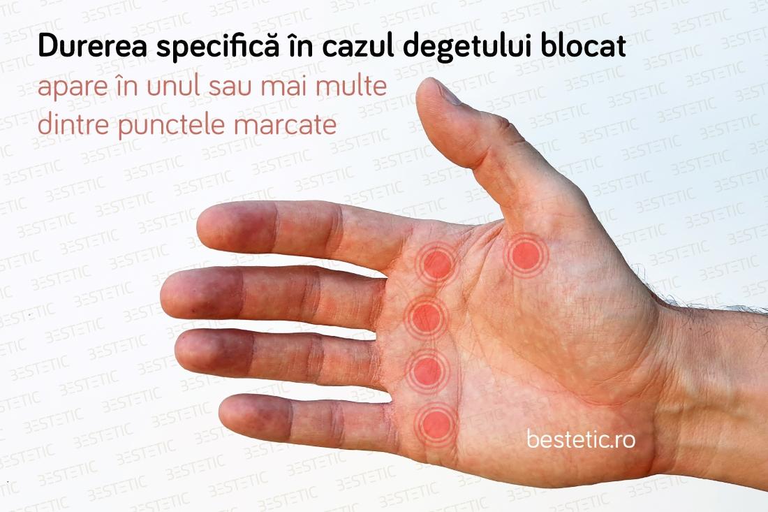 Artrita degetului mare - studioharry.ro