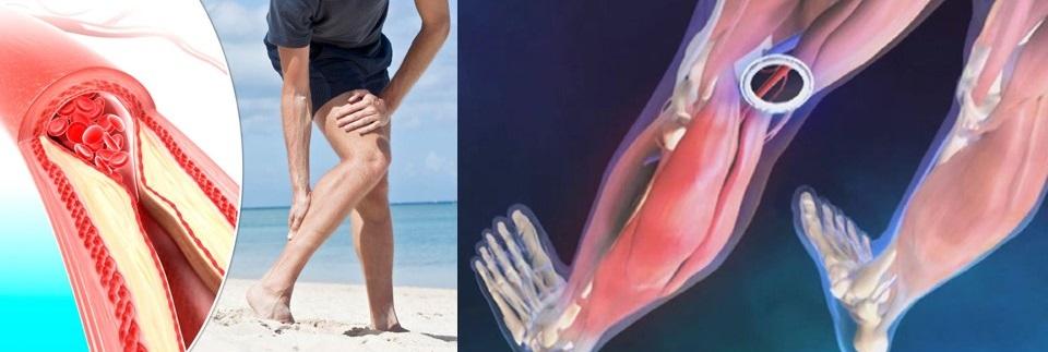 Cum vă puteți proteja mușchii de deficitul de magneziu