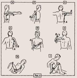 ruperea manșetei de rotație a tratamentului articulației umărului)