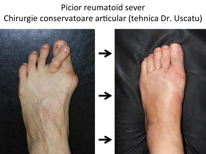 cu artrita reumatoidă, articulațiile sunt cele mai afectate)