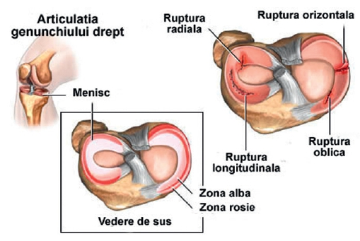 Meniscul cronic al genunchiului istoric medical)