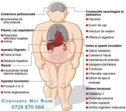 inflamație toracică)