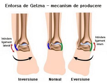tratament de entorsă la genunchi câte vindecă)