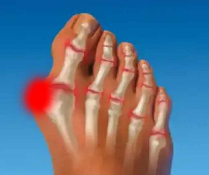 articulația pe degetul mare al piciorului stâng doare