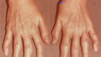 articulația degetului după rănire)