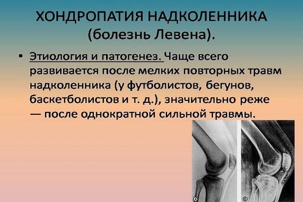 medicamentul greșit a fost injectat în articulație)