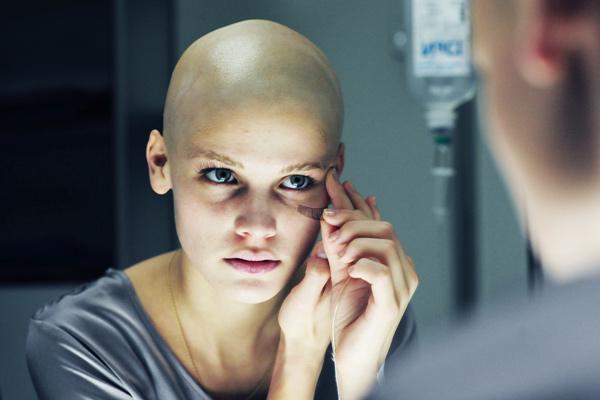 Ce să faci atunci când picioarele doare după chimioterapie - Melanomul
