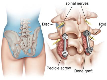 dureri de articulații jurnalul coloanei vertebrale)