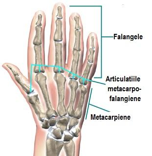 inflamația capsulelor articulației degetelor