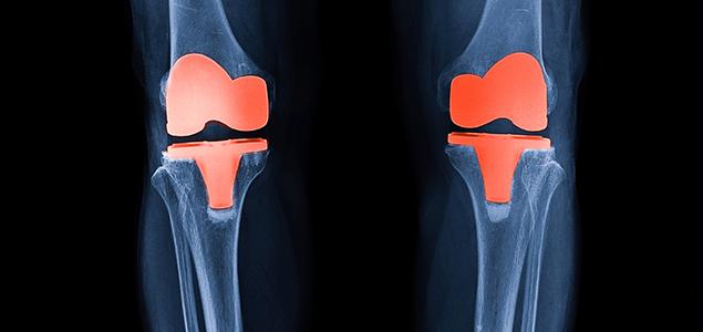 Factorii de risc implicati in aparitia osteonecrozei