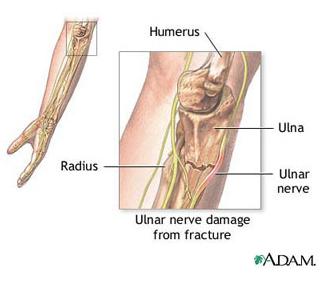 durerea în articulația cotului brațul nu se întinde
