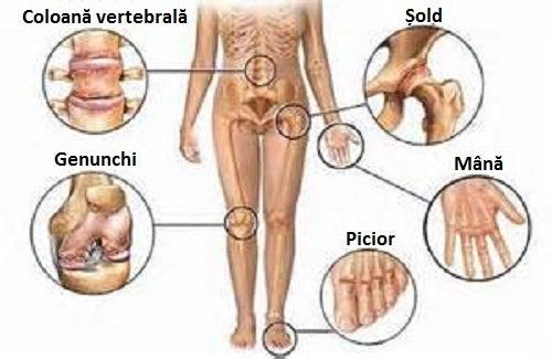 reteta de dureri articulare