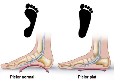 articulația pe piciorul mic doare)