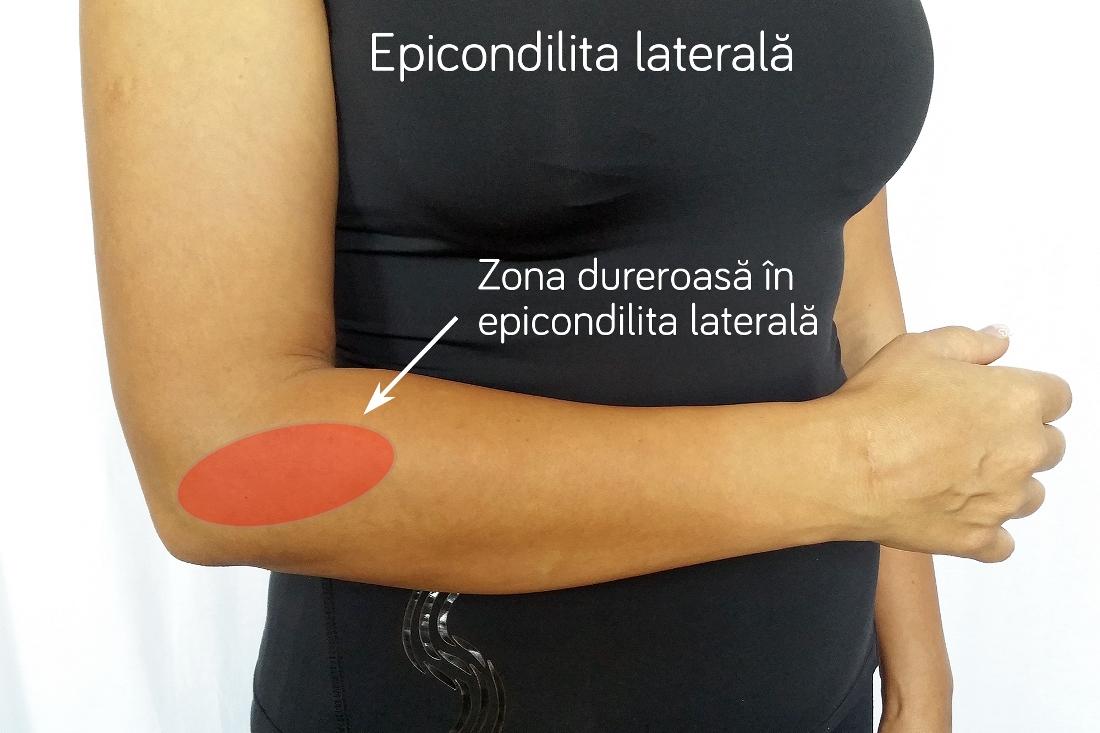 Epicondilita laterală sau cotul tenismenului, ce este si cum se tratează