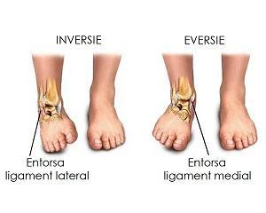 luxație în tratamentul articulațiilor interfalangiene