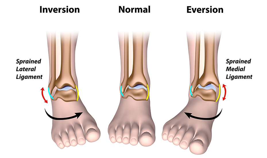 perioada de tratament a leziunilor ligamentelor articulației gleznei