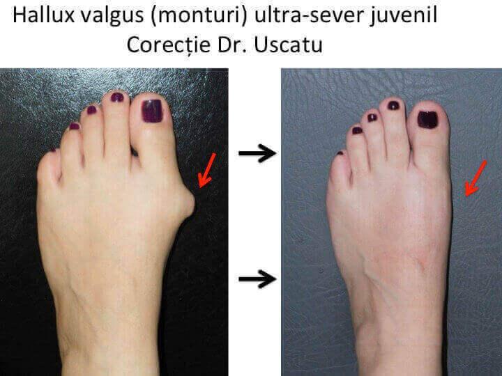 dureri articulare și pulmonare durere a articulațiilor mici ale piciorului