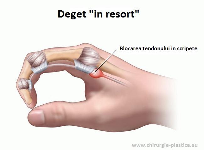articulațiile degetului stâng rănit