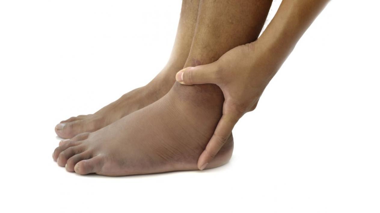 picioare umflate la glezna cauze