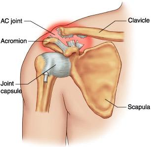 Durerea articulației claviculare superioare