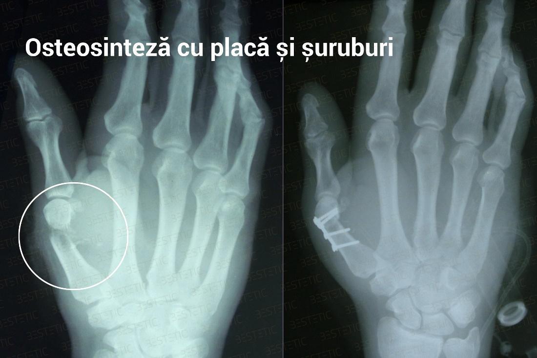 dureri articulare după fracturarea mâinii)