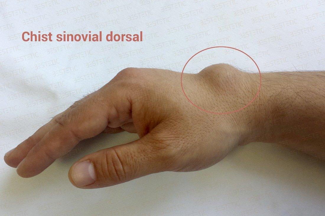 Dureri articulare la mâna stângă