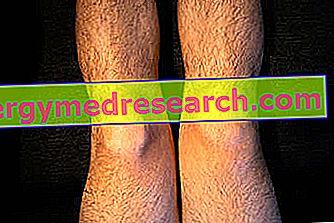 artrita acuta a genunchiului ce este