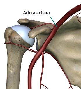 Artroza primul sterno articulațiilor costale