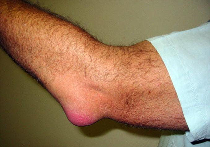 cum se tratează bursita articulației cotului