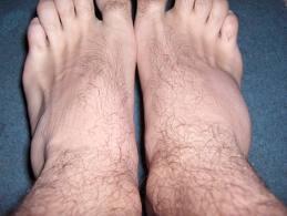 Tratamentul articulației degetelor după luxație