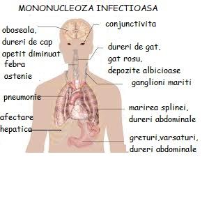 Articulațiile provoacă durere după mononucleoză. Umflarea a genunchiului - cauze, tratament