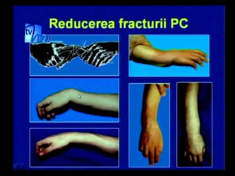 dureri articulare după fracturarea mâinii