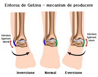 boli ale ligamentelor gleznei