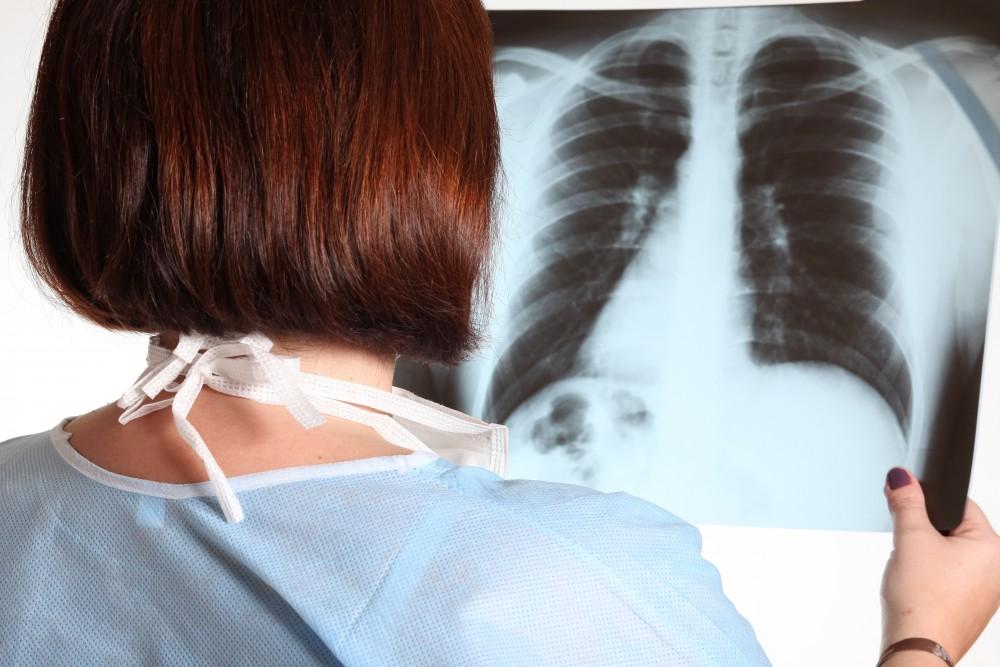 leziuni pulmonare în boli sistemice de țesut conjunctiv
