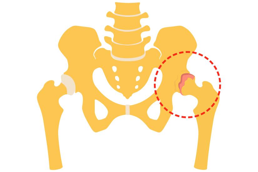 coxartroza simptomelor și tratamentului gradului de șold