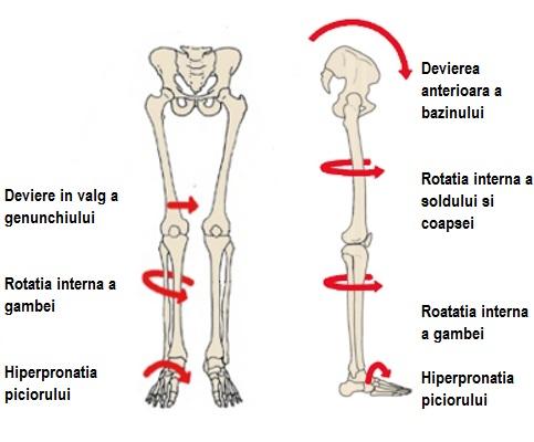desenând dureri în articulațiile picioarelor)