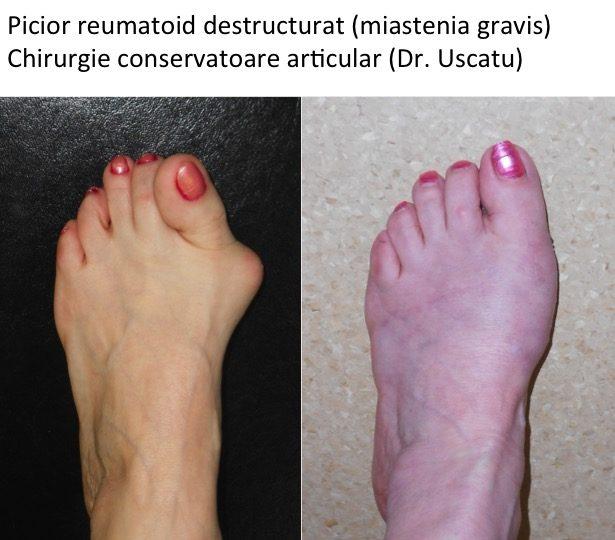 dureri articulare și picioare în vis tratamentul artrozei ce trebuie făcut